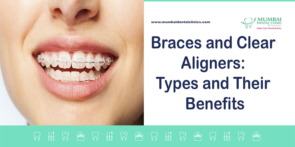 Braces and Clear Aligners:Types and their Benefits, best dentist in udaipur, best dentist in mumbai, Braces doctor in Udaipur