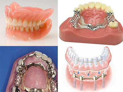 Dental Treatment Services in Udaipur, Dental Specialist Udaipur, Dental Specialist, Cosmetic dental treatment services, Dental implants, Oral and Maxillofacial Surgery, Orthodontic Treatment In Udaipur
